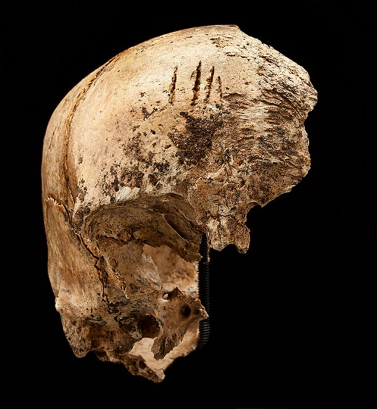 Four shallow chop marks on the top of a girl's skull, evidence of cannibalism during the Starving Time (Smithsonian Institution / Don Hurlbert)